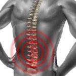 Основные методы лечения межпозвоночной грыжи