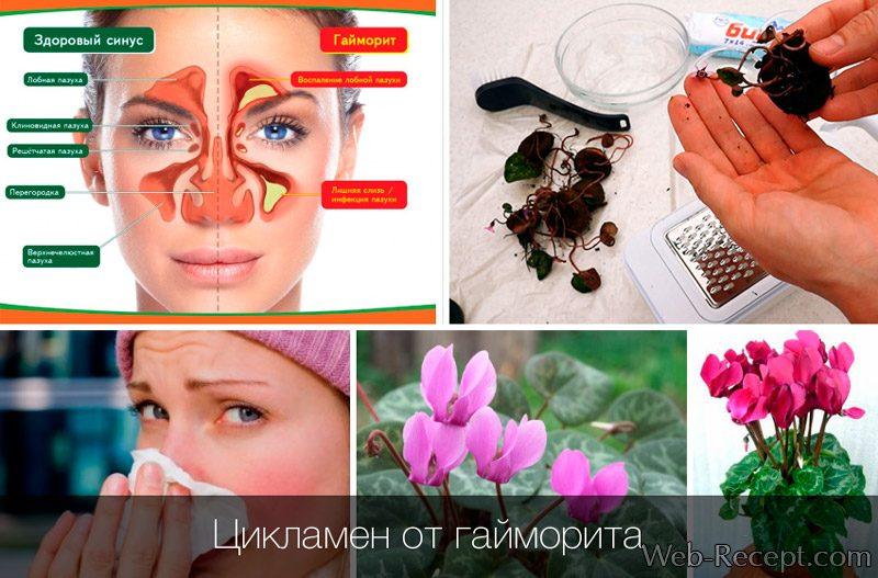 Цикламен клубни - эффективное лекарство от гайморита